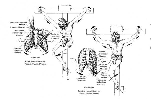 Ukrzyżowanie - schemat obciążeń, odziałujących naciało